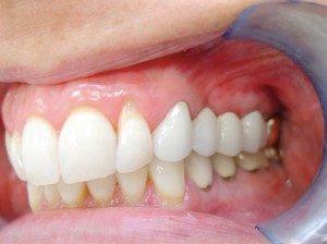 mini dental implants Belfast BT6 8PX, UK